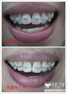 记录 牙套妈咪牙套半月,略有成效 7 龅牙 暴牙矫正 中国最大的牙齿矫...