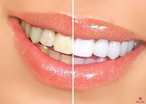 洗牙前后对比照片-喷砂洁牙