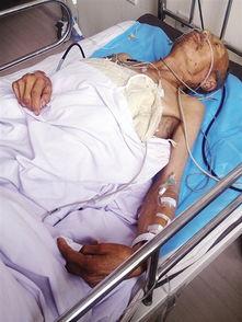 青冈县4名老人睾丸被割 53岁伤者周某 用刀片就把我睾丸割掉了