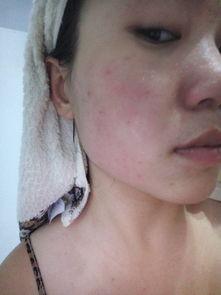 ...yric-说说皮肤过敏那些事儿——访华中科技大学附属协和医院皮肤科...