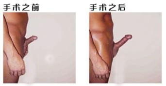 和睾丸发育近于正常,仅阴茎短小,勃起长度小于10厘米,正常中国人...