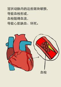...强冷空气来袭,胸痛未必是心梗前兆切勿乱服药