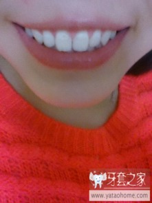 ...们觉得我有没有必要戴牙套 中国最大的牙齿矫正论坛及精神家园,...