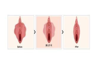 在正常情况下,女性的阴蒂包皮仅... 只是勃起的长度一般只有1-1.5cm...