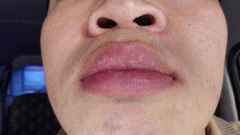 最近嘴唇上长了密密麻麻的小泡,像颗粒状的,很小,似乎不是水泡,...