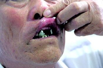 坏牙齿-本报记者       6月23日,76岁的范重海拨打本报热线8308110反映,4月...