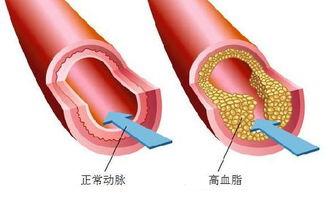 /或甘油三酯(TG)过高或高密度脂蛋白胆固醇(HDL-C)指标过高.  ...