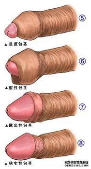 男性包皮过长的图片 包茎和包皮过长判断标准