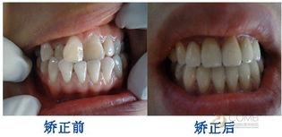 下颚生长过度,上颚发育不良,需... 下牙往外突出,上牙往里和,而骨...
