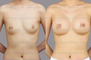 大小胸是怎么引起的?大小胸正常吗?