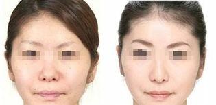 鼻小柱整形手术的恢复时间及术后护理:-泰州四院鼻小柱整容要多久...