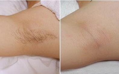相关文章:广大万人脱毛节-广州激光脱毛会伤害皮肤吗