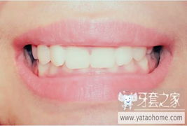 牙套之家|牙齿矫正 矫正牙齿|正畸|整牙|牙齿美白|牙套日记|智齿|拔牙|正...