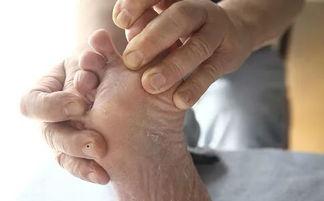 病人泡脚,因为神经病变导致对热... 治疗起来不仅花费相当高,而且周...