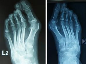 畸骨-拇外翻导致拇指骨头畸形