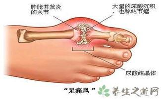 治疗痛风的简单方法 治疗痛风的偏方大全