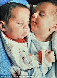 连体婴儿,他们身体部分连结为