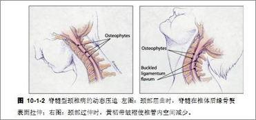 脊髓型颈椎病术后中期训练方法
