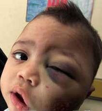 污一点的网名男生-...血病的伊拉克小男孩,据说他是美国贫铀弹污染的受害者.-高清组图...