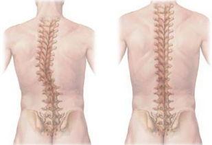 脊柱侧弯的矫正运动法