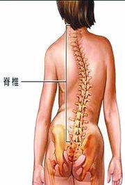 脊柱侧弯 脊柱侧弯自我矫正法 青少年脊柱侧弯 慧择保险网