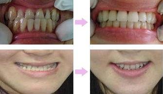 洗牙去除牙结石案例,【了解更多洗牙知识咨询在线医生】-牙结石不...