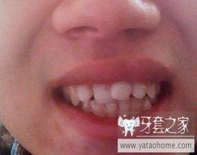 到底要不要整牙 1 牙套前自拍图 中国最大的牙齿矫正论坛及精神家园...