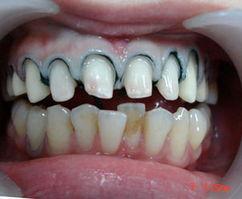 如何拔出阻生齿、坏智齿,保证牙齿健康