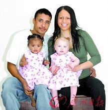 黑人爸妈生下白人女婴 源自基因突变