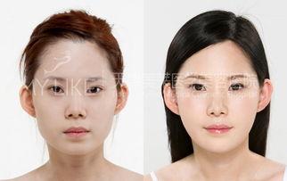 会呼吸的疤-开眼角手术后眼睛效果会更大更自然,但开眼角手术疤痕让很多爱美人...