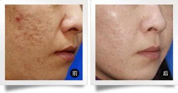 会呼吸的疤-痘痘的临床表现为黑头粉刺、白头粉刺、脓疱、炎性丘疹、结节、囊肿...