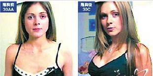 受偶像影响英国未成年少女隆胸争做波霸 loud7