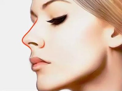上海沃美医疗鼻修复