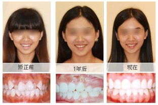 洗牙前后对比照-矫牙过程中应注意哪些事项