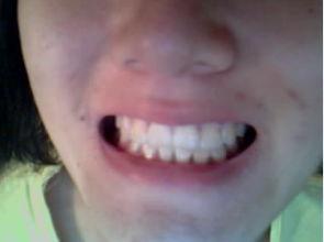 地包天整牙两年,已经摘牙套啦,上裸牙照片