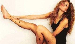 女子全身斑点成网红 揭秘为何全身长满斑点 图
