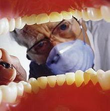 洗牙不出血不能清除牙结石