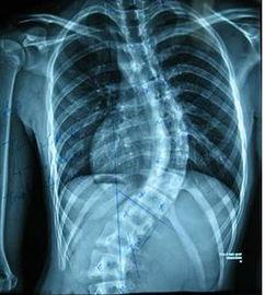 脊柱侧弯的正确诊断方法是什么呢