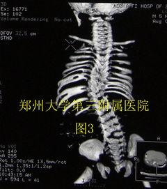 畸骨-半椎体 对侧 骨 桥及多处椎体畸形并肋畸形导致严