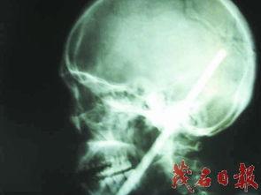 ...米金属秤杆插入大脑幸 医生救回一命