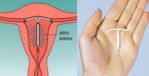 图解女性上环手术的全过程