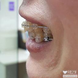 门牙缝发黑蛀牙的图片 斗图表情包大全 - 与 门