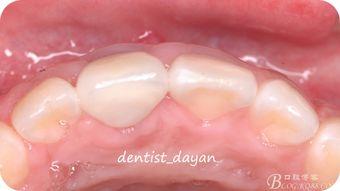 宝宝出牙前需要做口腔护理吗?