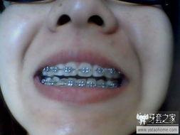 ...整 牙套之家 牙齿矫正 Powered by Discuz -一年整
