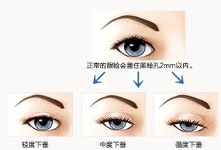 深圳上眼睑下垂矫正多少钱
