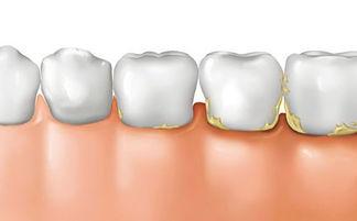 钙无机物成分和20~25%的水份决定了牙结石