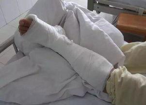 民警右脚脚踝韧带拉伤,打着石膏在医院治疗,需要恢复一段时间-猖...