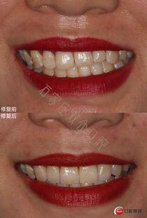 同 牙联邦技师张鼎易大师 合作 前牙美学贴面病例 三 康朝辉