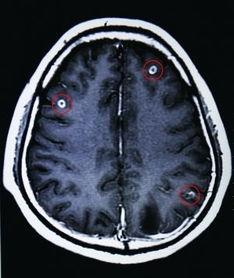 美女身上长满寄生虫-男子生吃猪血致脑中寄生19条虫 图