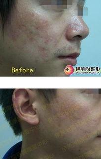 孔烧伤疤痕影响呼吸